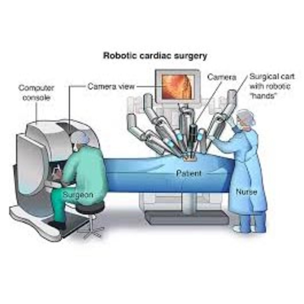 Robots - orthopedic evolution, surgery revolution